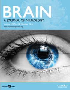 brain-kinan-muhammed